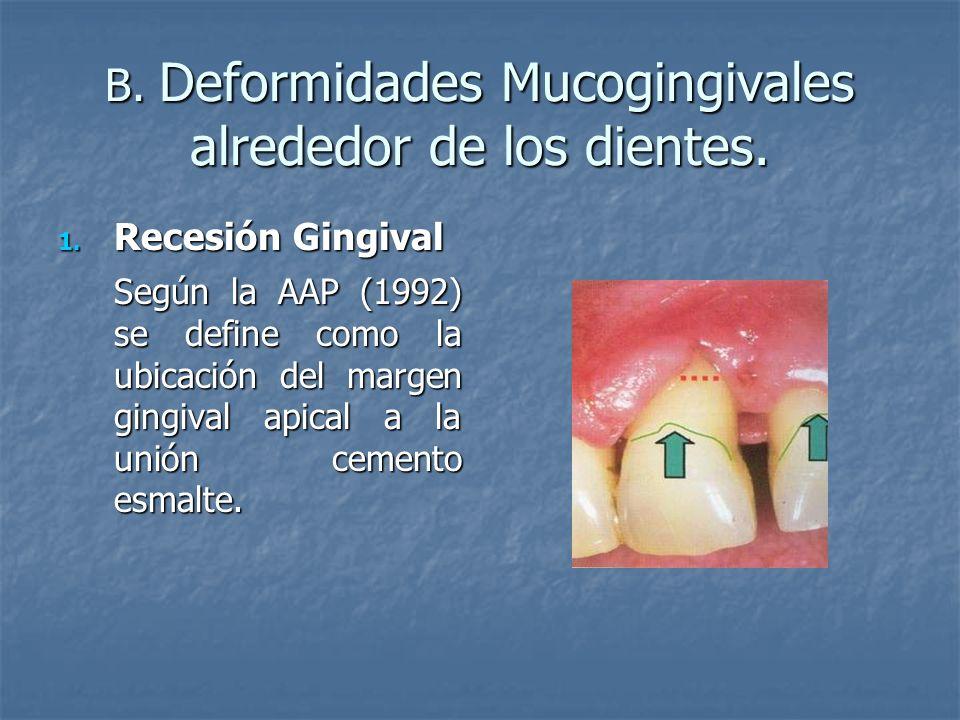 B. Deformidades Mucogingivales alrededor de los dientes. 1. Recesión Gingival Según la AAP (1992) se define como la ubicación del margen gingival apic