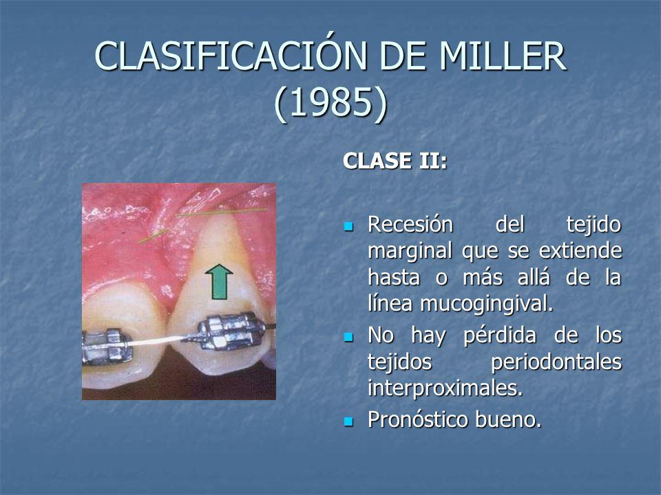 CLASIFICACIÓN DE MILLER (1985) CLASE II: Recesión del tejido marginal que se extiende hasta o más allá de la línea mucogingival. Recesión del tejido m