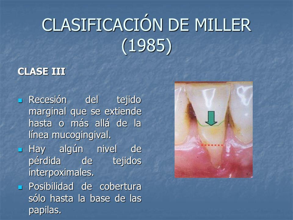 CLASIFICACIÓN DE MILLER (1985) CLASE III Recesión del tejido marginal que se extiende hasta o más allá de la línea mucogingival. Recesión del tejido m