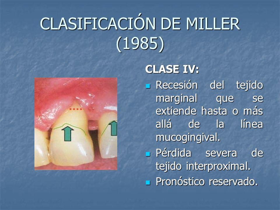 CLASIFICACIÓN DE MILLER (1985) CLASE IV: Recesión del tejido marginal que se extiende hasta o más allá de la línea mucogingival. Recesión del tejido m