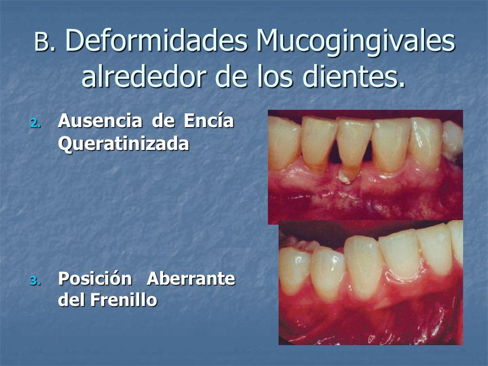 B. Deformidades Mucogingivales alrededor de los dientes. 2. Ausencia de Encía Queratinizada 3. Posición Aberrante del Frenillo