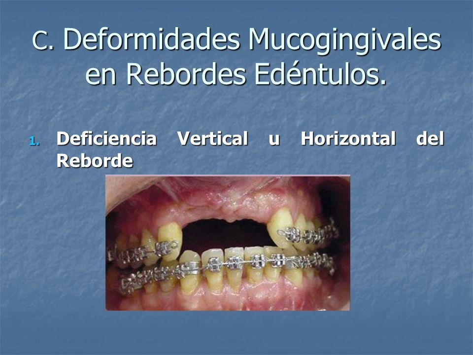 C. Deformidades Mucogingivales en Rebordes Edéntulos. 1. Deficiencia Vertical u Horizontal del Reborde