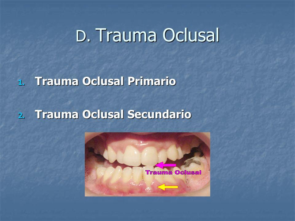D. Trauma Oclusal 1. Trauma Oclusal Primario 2. Trauma Oclusal Secundario