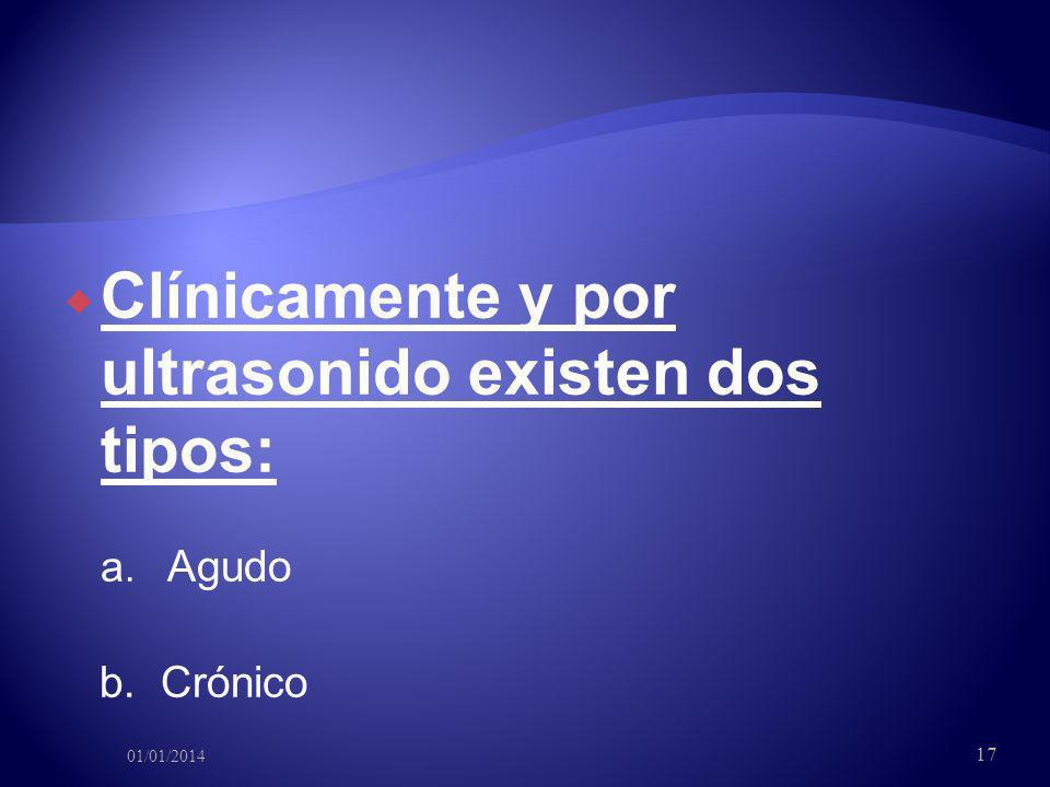 Clínicamente y por ultrasonido existen dos tipos: a. Agudo b. Crónico 01/01/2014 17