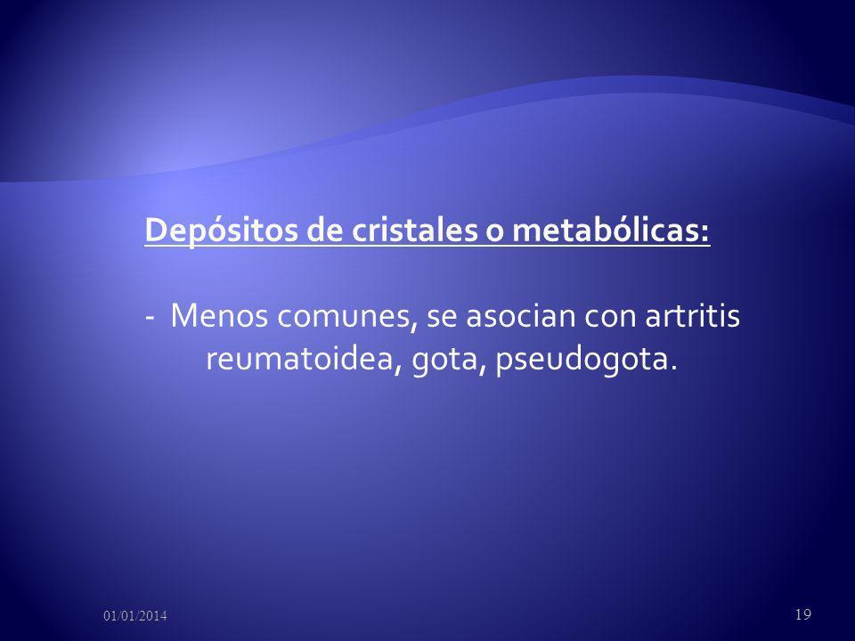 Depósitos de cristales o metabólicas: - Menos comunes, se asocian con artritis reumatoidea, gota, pseudogota. 01/01/2014 19