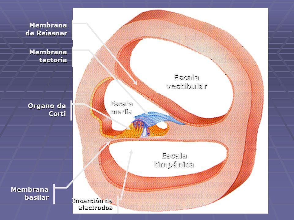 Ubicación de los electrodos La guía de electrodos puede insertarse en la escala timpánica unos 25 mm, en la proximidad de la membrana basilar. La guía
