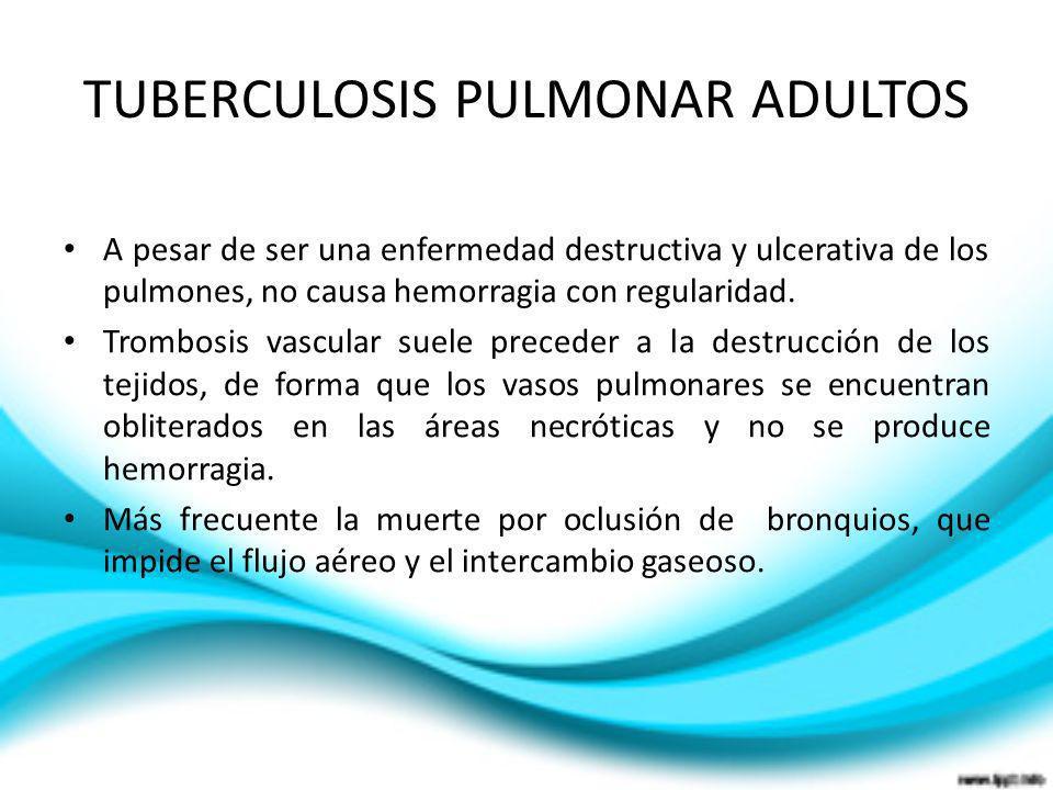 TUBERCULOSIS PULMONAR ADULTOS A pesar de ser una enfermedad destructiva y ulcerativa de los pulmones, no causa hemorragia con regularidad. Trombosis v