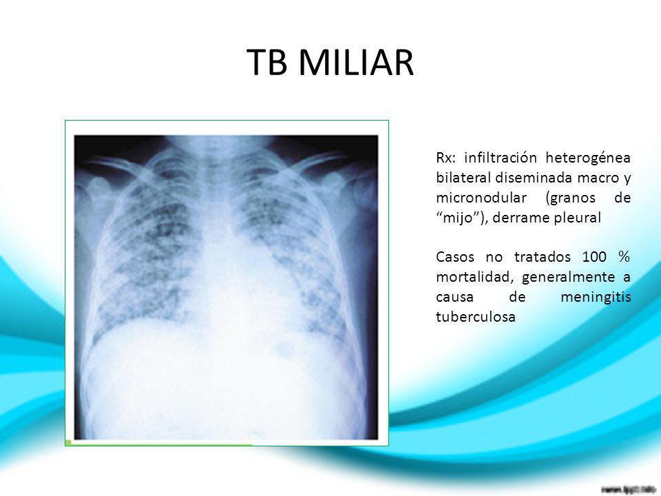 TB MILIAR Rx: infiltración heterogénea bilateral diseminada macro y micronodular (granos de mijo), derrame pleural Casos no tratados 100 % mortalidad,