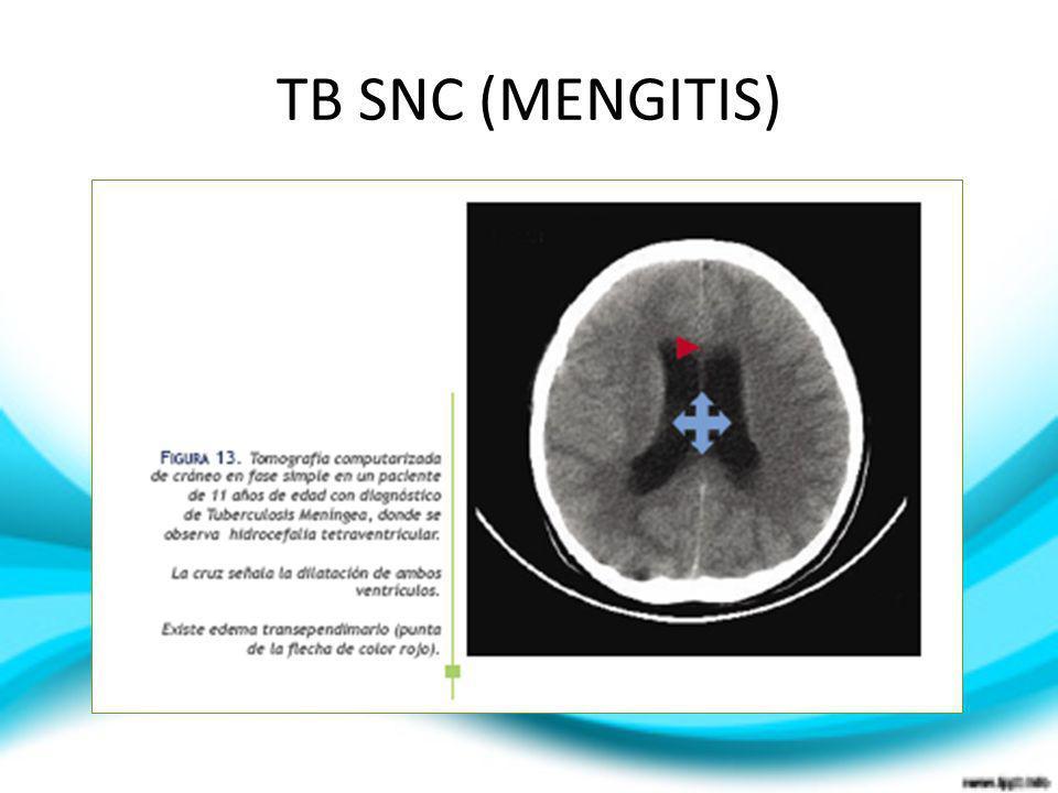 TB SNC (MENGITIS)