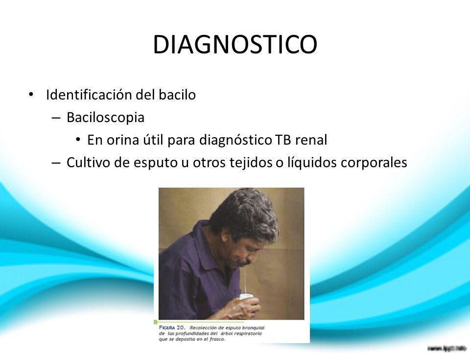 Identificación del bacilo – Baciloscopia En orina útil para diagnóstico TB renal – Cultivo de esputo u otros tejidos o líquidos corporales