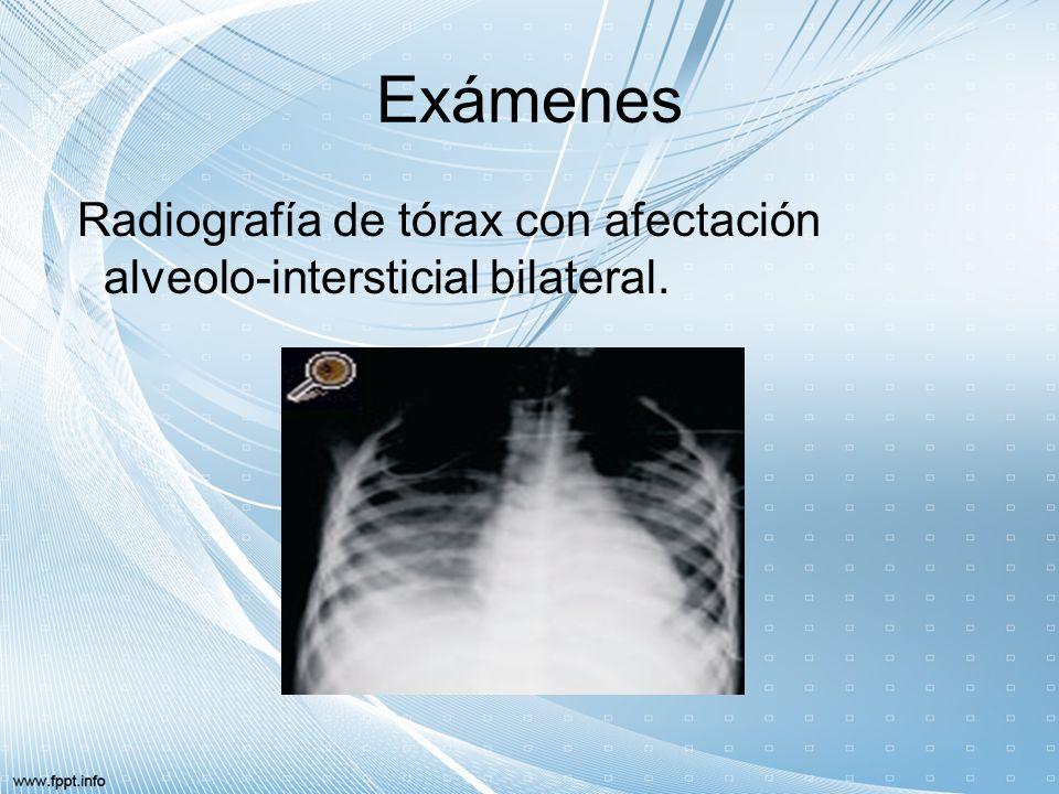 Exámenes Radiografía de tórax con afectación alveolo-intersticial bilateral.