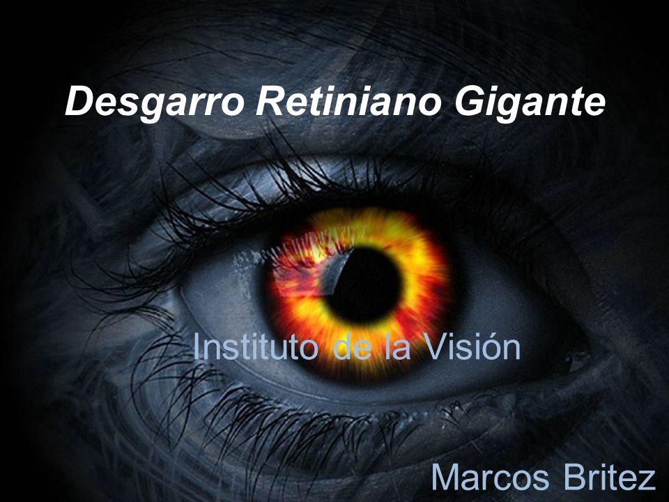 Desgarro Retiniano Gigante Instituto de la Visión Marcos Britez