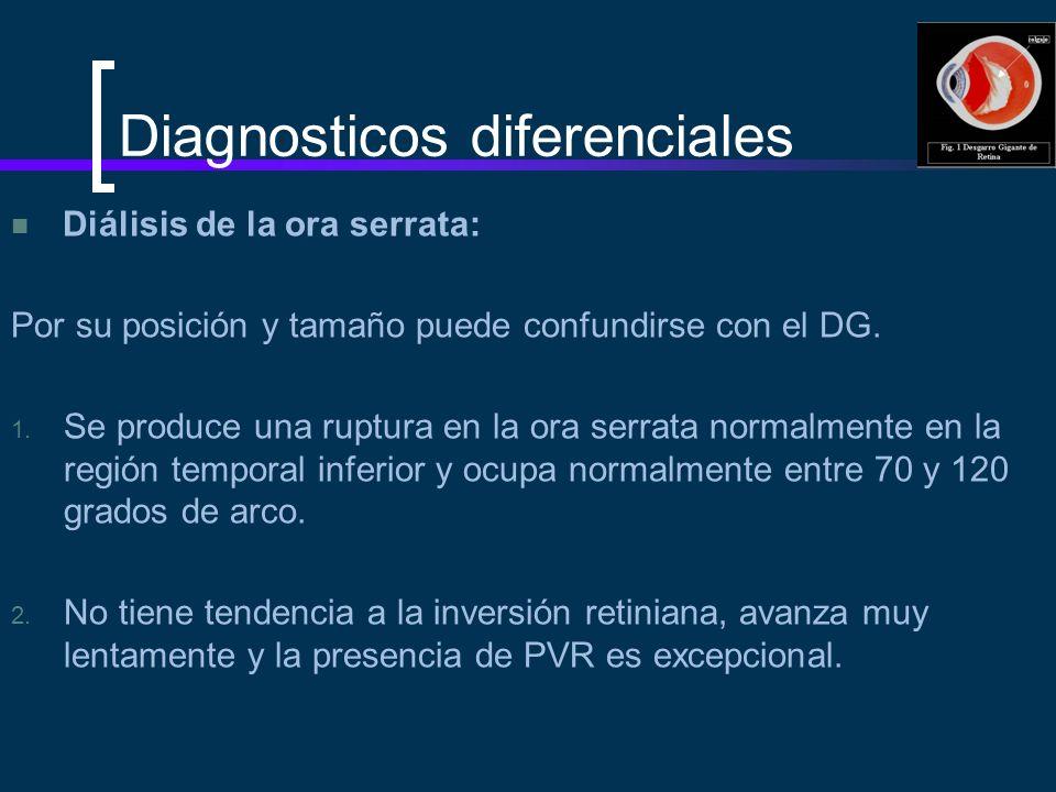 Diagnosticos diferenciales Diálisis de la ora serrata: Por su posición y tamaño puede confundirse con el DG. 1. Se produce una ruptura en la ora serra