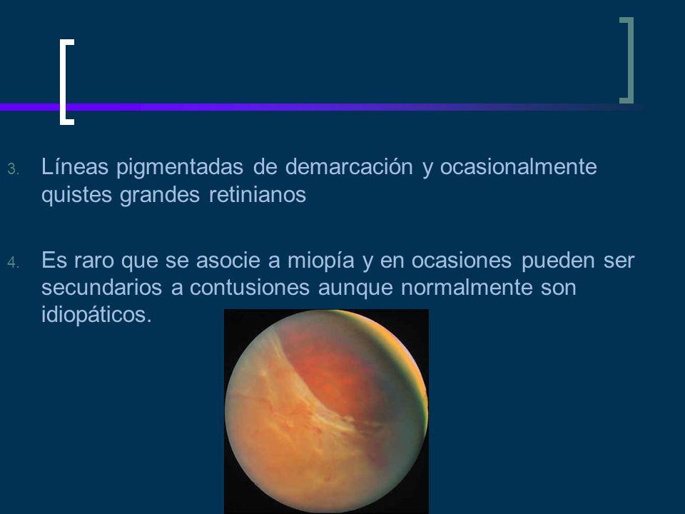 3. Líneas pigmentadas de demarcación y ocasionalmente quistes grandes retinianos 4. Es raro que se asocie a miopía y en ocasiones pueden ser secundari