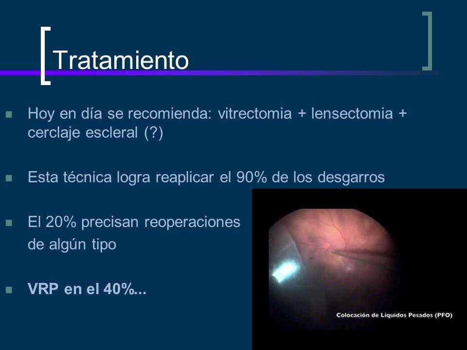 Tratamiento Hoy en día se recomienda: vitrectomia + lensectomia + cerclaje escleral (?) Esta técnica logra reaplicar el 90% de los desgarros El 20% pr
