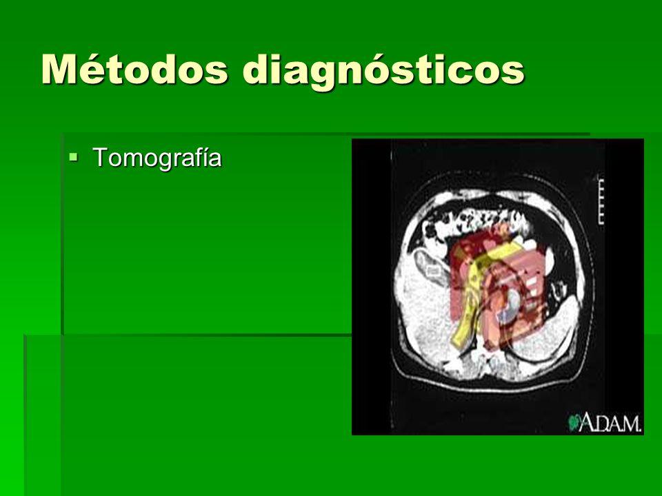 Métodos diagnósticos Tomografía Tomografía