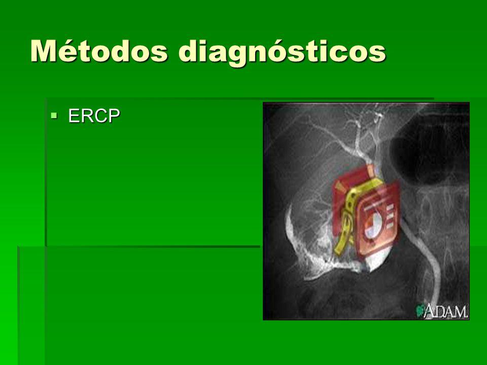 Métodos diagnósticos ERCP ERCP