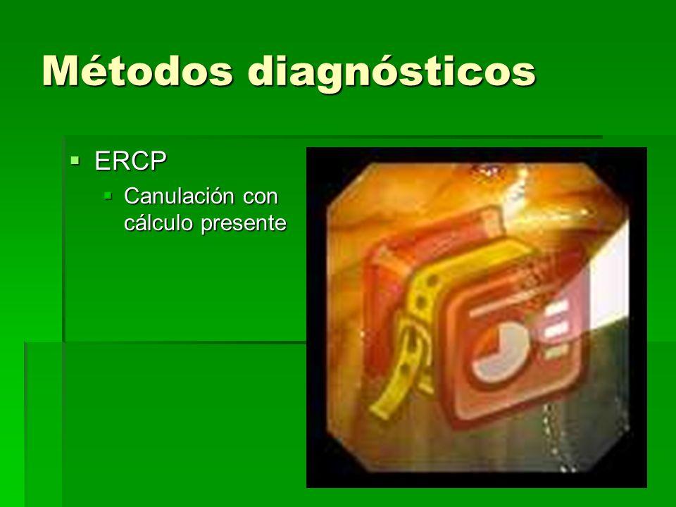 Métodos diagnósticos ERCP ERCP Canulación con cálculo presente Canulación con cálculo presente