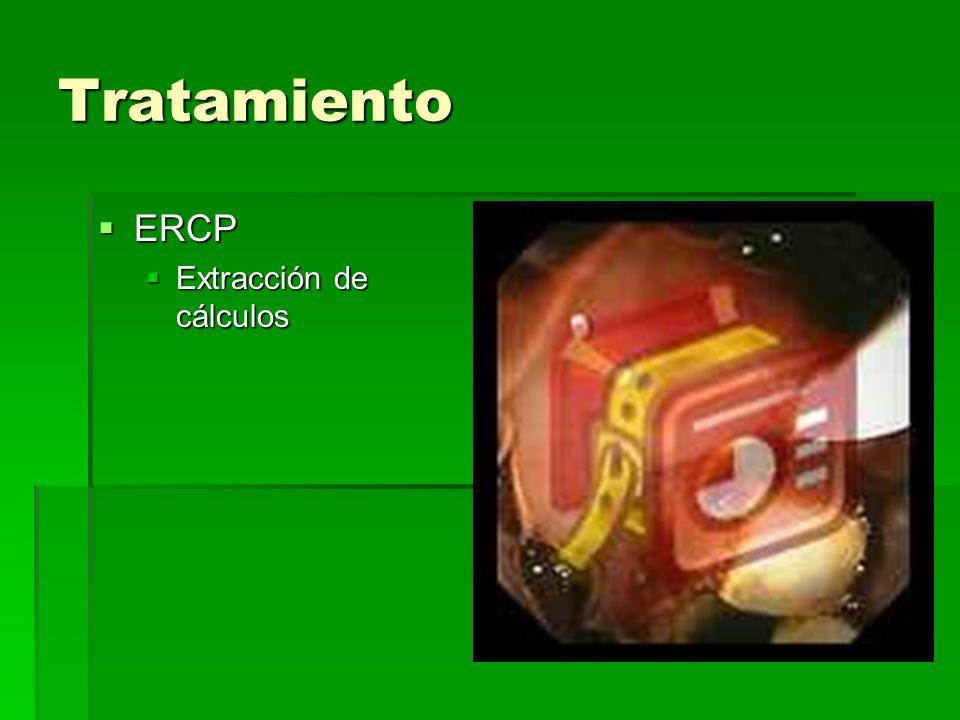 Tratamiento ERCP ERCP Extracción de cálculos Extracción de cálculos