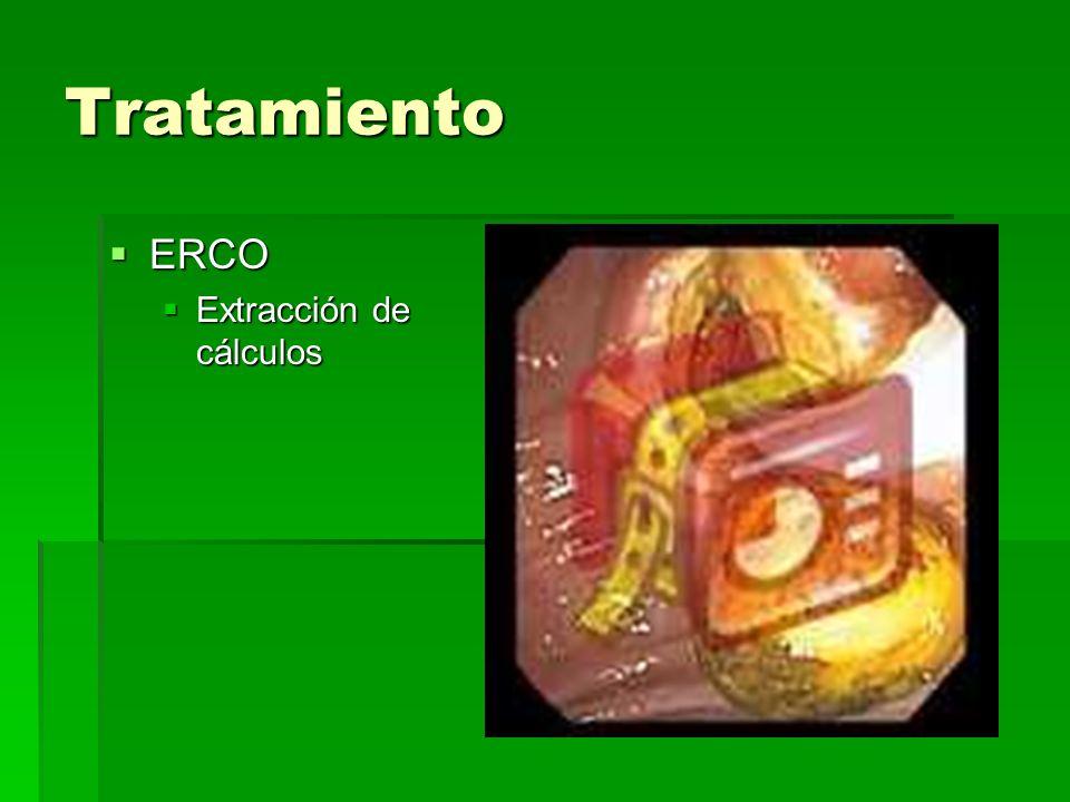 Tratamiento ERCO ERCO Extracción de cálculos Extracción de cálculos
