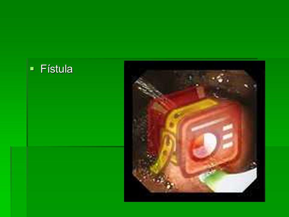 Fístula Fístula