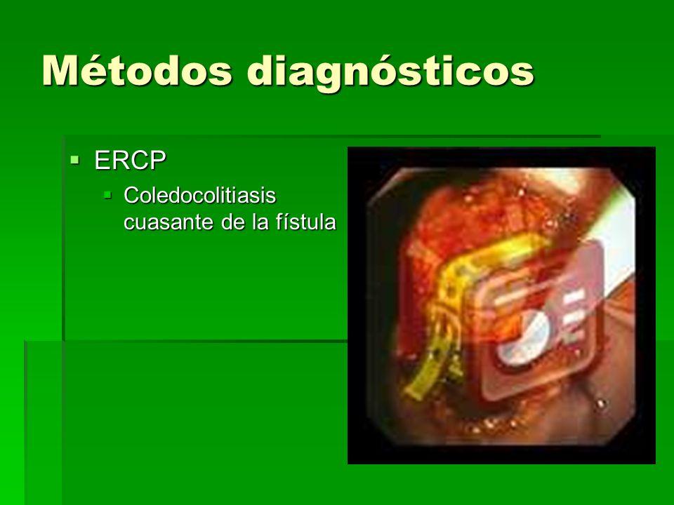 Métodos diagnósticos ERCP ERCP Coledocolitiasis cuasante de la fístula Coledocolitiasis cuasante de la fístula