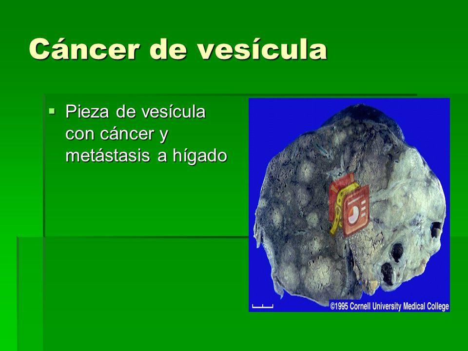 Cáncer de vesícula Pieza de vesícula con cáncer y metástasis a hígado Pieza de vesícula con cáncer y metástasis a hígado