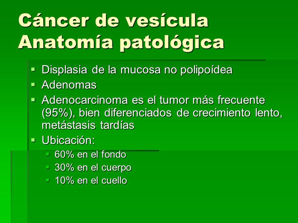 Cáncer de vesícula Anatomía patológica Displasia de la mucosa no polipoídea Displasia de la mucosa no polipoídea Adenomas Adenomas Adenocarcinoma es e
