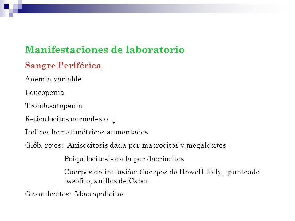 Manifestaciones de laboratorio Sangre Periférica Anemia variable Leucopenia Trombocitopenia Reticulocitos normales o Indices hematimétricos aumentados