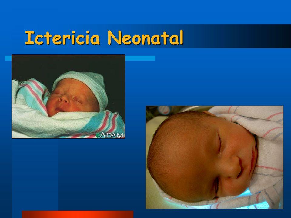 Diarrea Eritema cutáneo Aumento de pérdidas insensibles Síndrome de bebé bronceado Quemaduras Daño retina Apneas Distensión abdominal Plaquetopenia Hipocalcemia Daño de DNA celular Efectos adversos de fototerapia