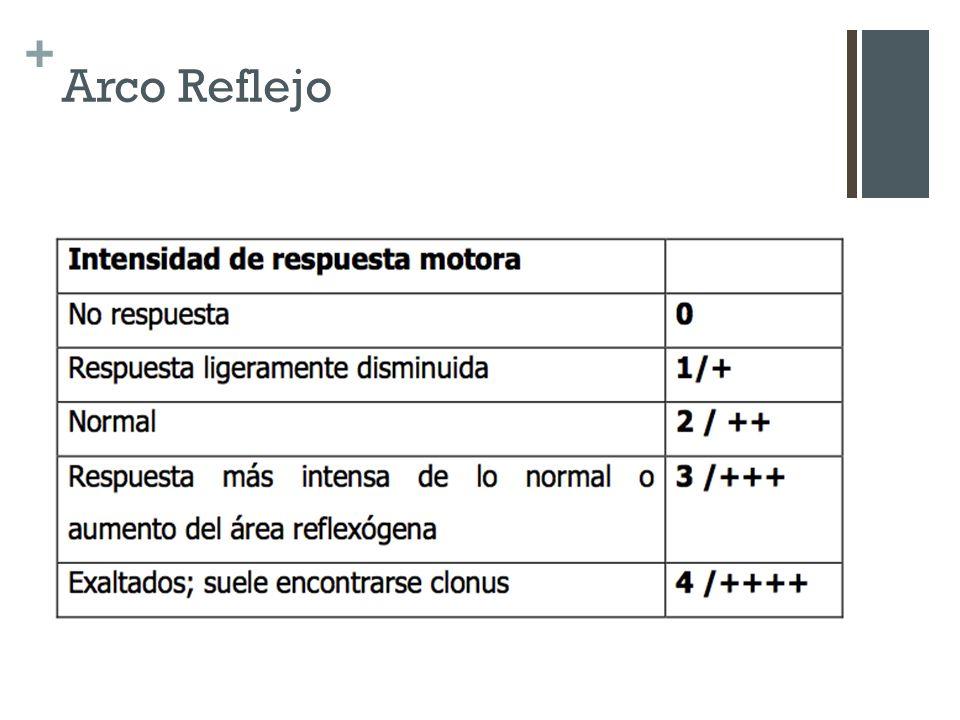 + Arco Reflejo