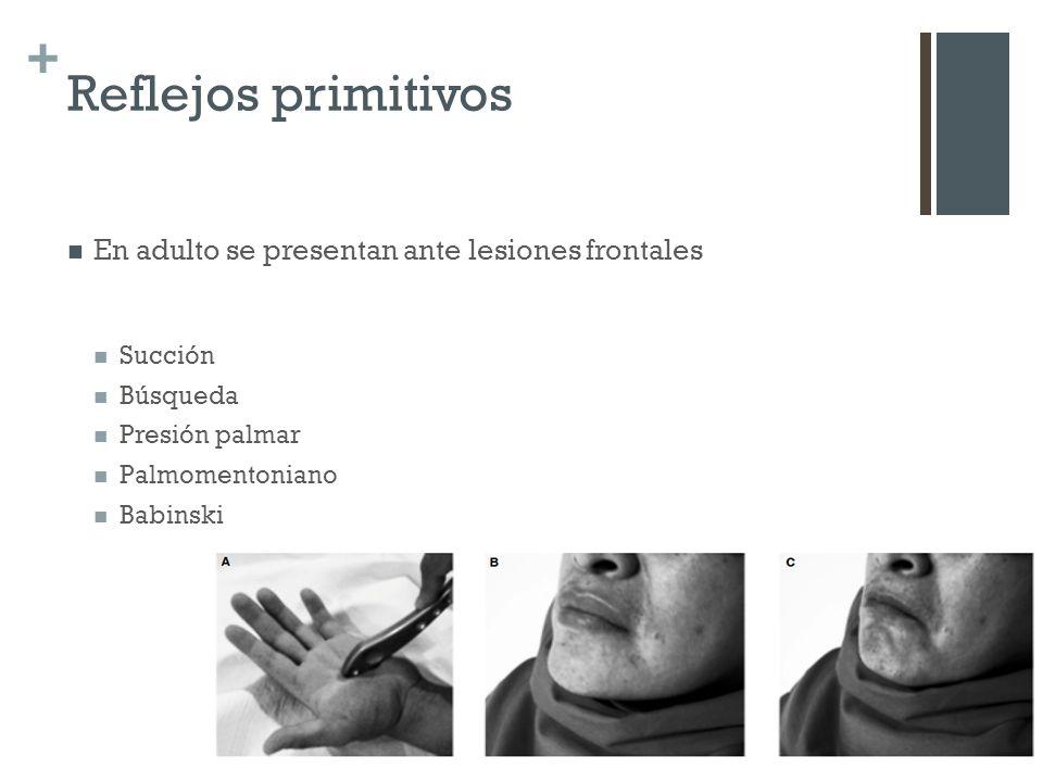 + Reflejos primitivos En adulto se presentan ante lesiones frontales Succión Búsqueda Presión palmar Palmomentoniano Babinski