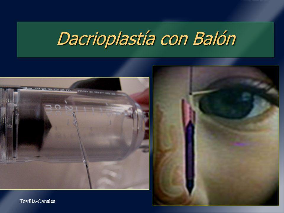 Tovilla-Canales Dacrioplastía con Balón