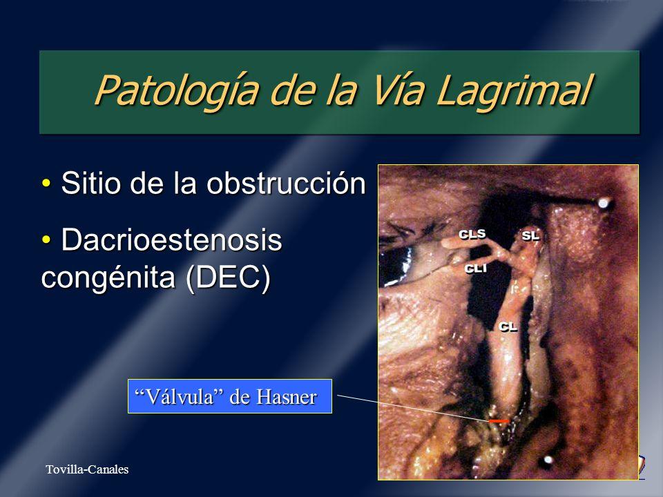Tovilla-Canales Patología de la Vía Lagrimal Sitio de la obstrucción Sitio de la obstrucción Dacrioestenosis congénita (DEC) Dacrioestenosis congénita