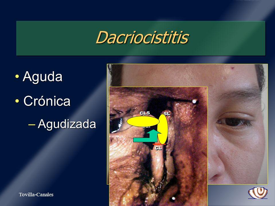 DacriocistitisDacriocistitis Aguda Aguda Crónica Crónica – Agudizada