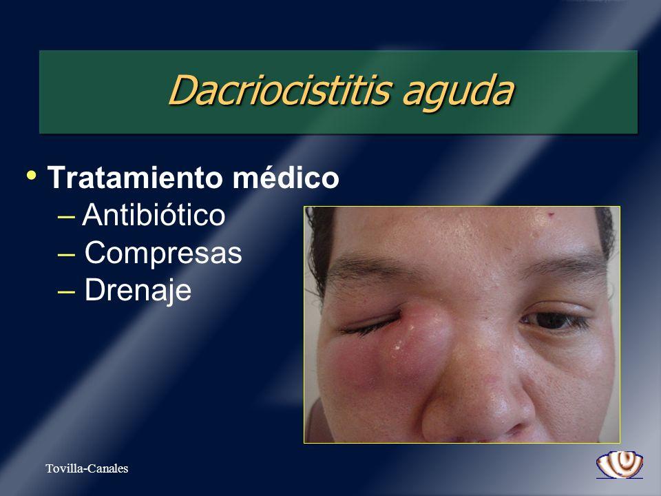 Tovilla-Canales Dacriocistitis aguda Tratamiento médico – – Antibiótico – – Compresas – – Drenaje