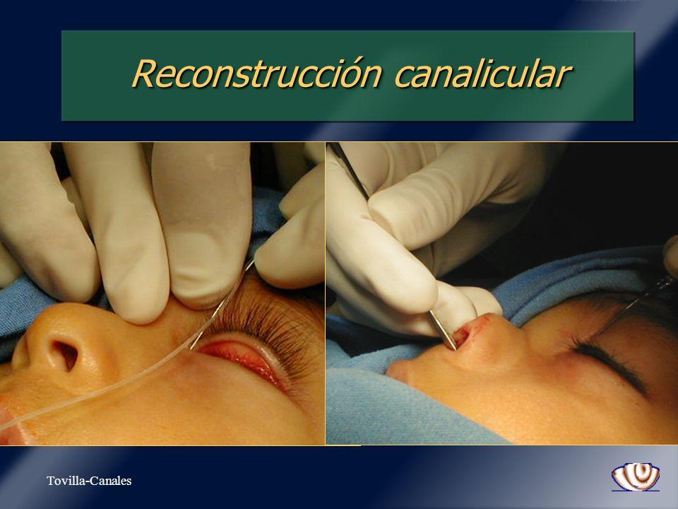 Tovilla-Canales Reconstrucción canalicular