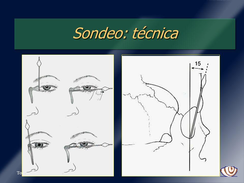 Tovilla-Canales Sondeo: técnica