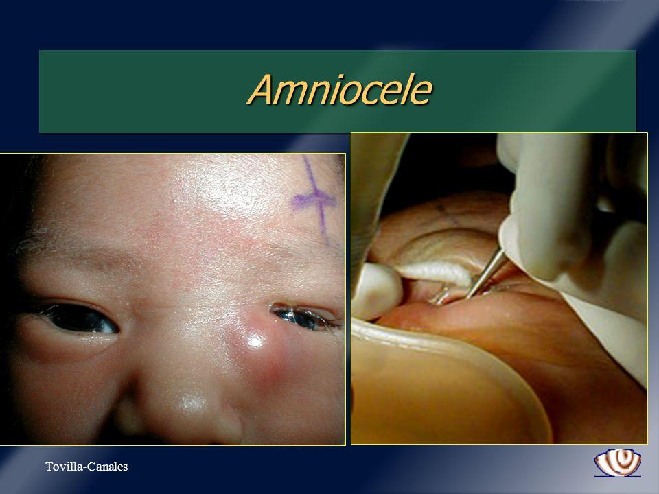 Tovilla-Canales AmnioceleAmniocele