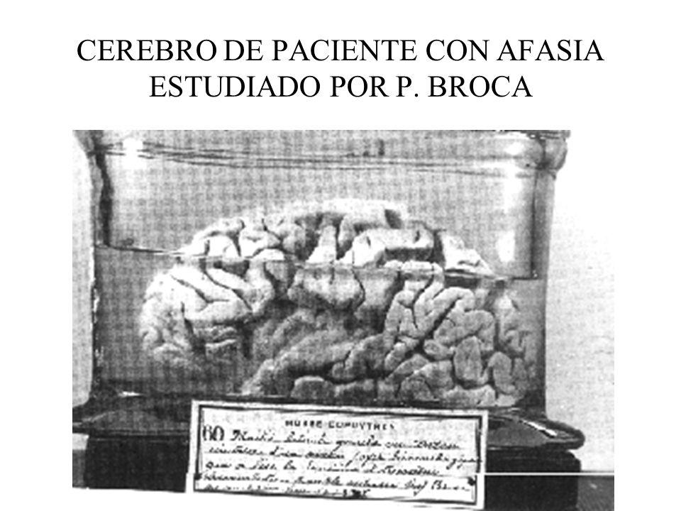 CEREBRO DE PACIENTE CON AFASIA ESTUDIADO POR P. BROCA