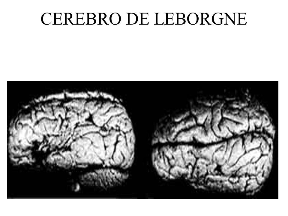 HISTORIA DE LA AFASIA: CONEXIONISMO CLASICO En 1874, Carl Wernicke publicó una monografía en la que argumentaba que habían diferentes tipos de Afasia, las cuáles podían ser encontradas después de lesiones del hemisferio izquierdo.