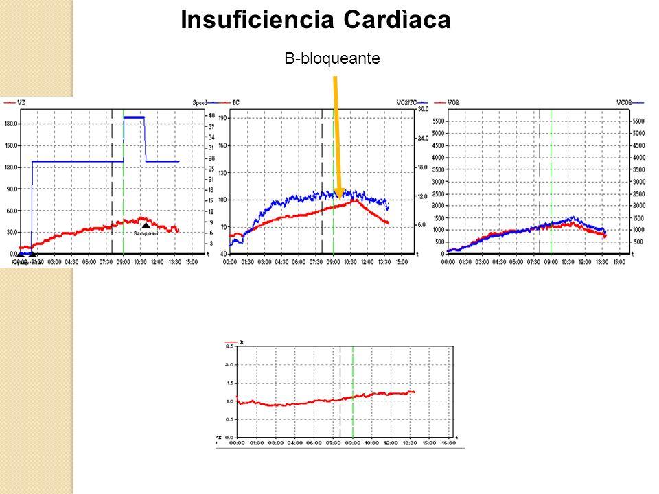 Insuficiencia Cardìaca B-bloqueante
