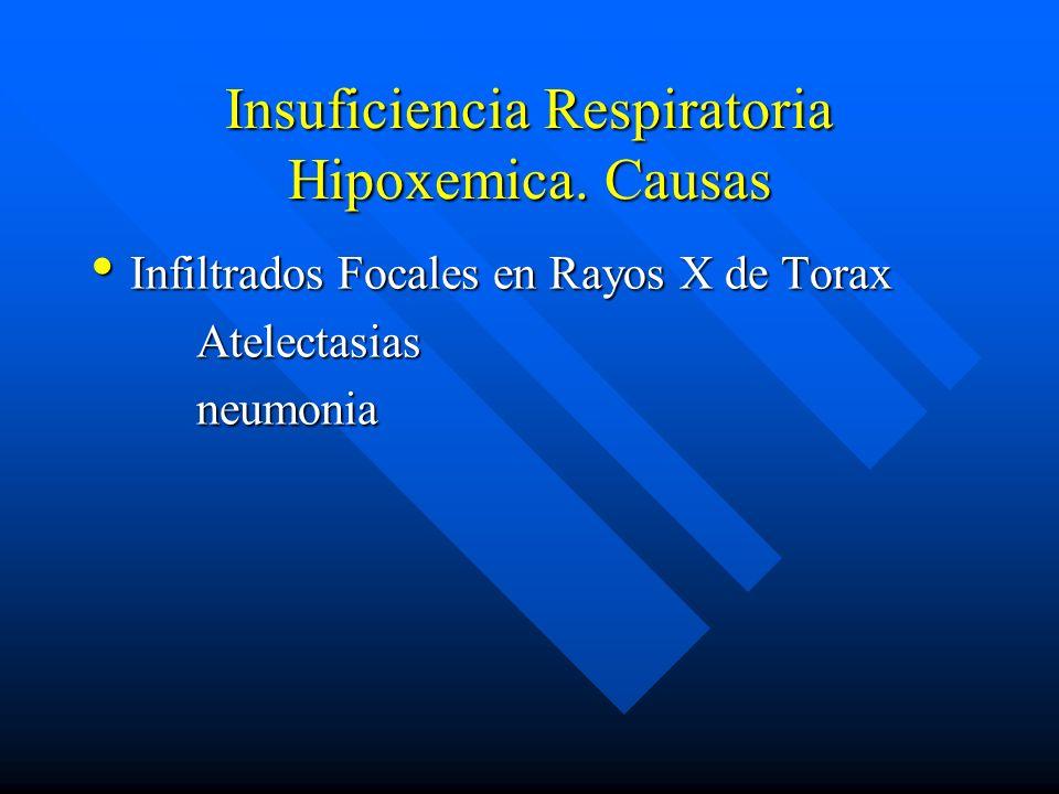 Insuficiencia Respiratoria Hipoxemica. Causas Infiltrados Focales en Rayos X de Torax Infiltrados Focales en Rayos X de Torax Atelectasias Atelectasia