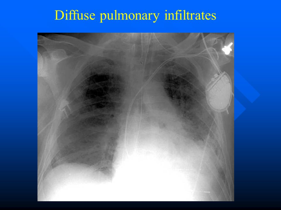 Diffuse pulmonary infiltrates