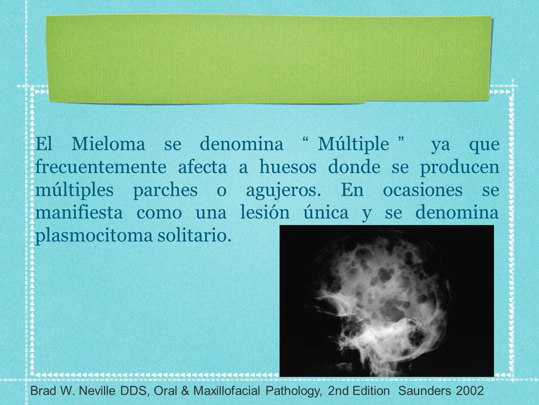 El Mieloma se denomina Múltiple ya que frecuentemente afecta a huesos donde se producen múltiples parches o agujeros. En ocasiones se manifiesta como