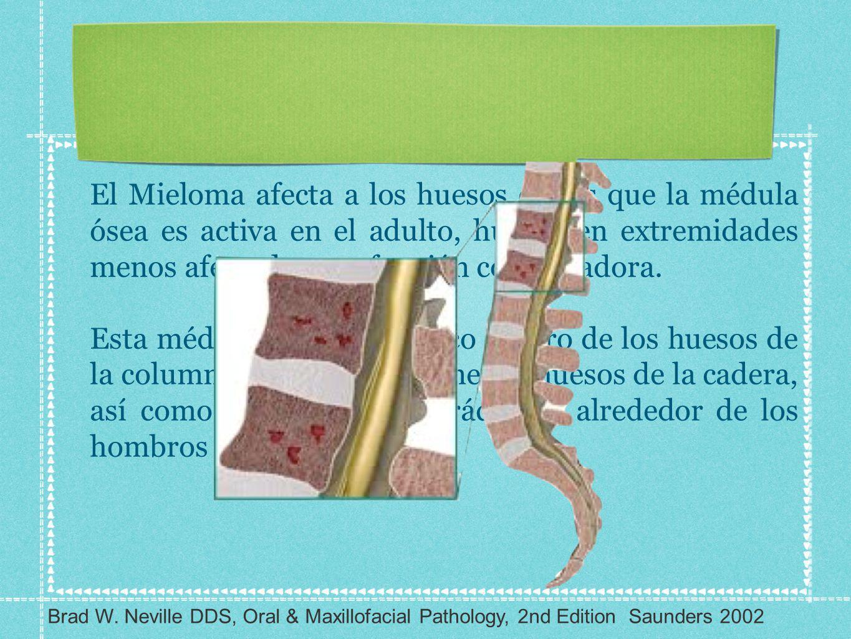 El Mieloma afecta a los huesos en los que la médula ósea es activa en el adulto, huesos en extremidades menos afectados por función conservadora. Esta
