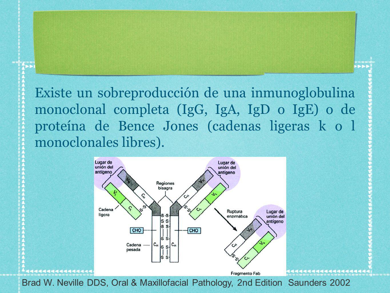 Existe un sobreproducción de una inmunoglobulina monoclonal completa (IgG, IgA, IgD o IgE) o de proteína de Bence Jones (cadenas ligeras k o l monoclo