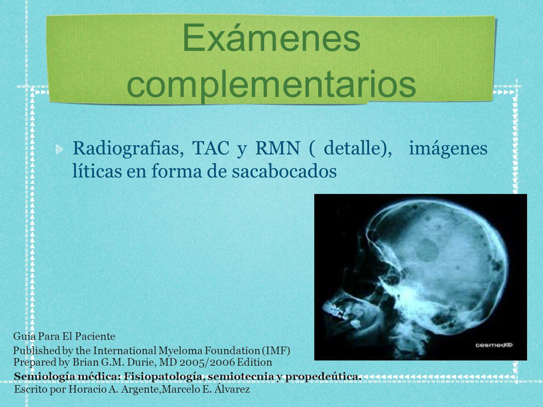 Exámenes complementarios Radiografias, TAC y RMN ( detalle), imágenes líticas en forma de sacabocados Semiología médica: Fisiopatología, semiotecnia y