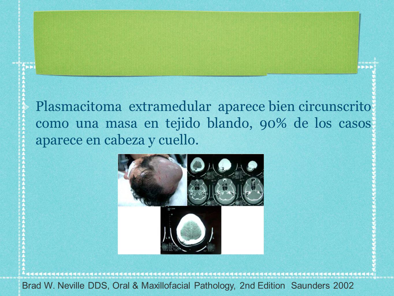 Plasmacitoma extramedular aparece bien circunscrito como una masa en tejido blando, 90% de los casos aparece en cabeza y cuello. Brad W. Neville DDS,