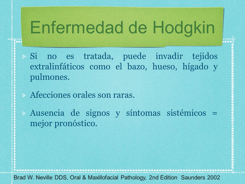 Enfermedad de Hodgkin Si no es tratada, puede invadir tejidos extralinfáticos como el bazo, hueso, hígado y pulmones. Afecciones orales son raras. Aus